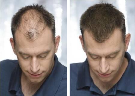 Toppik™ Haaraufbaufasern